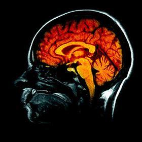 http://www.brainimpact.eu/files/cerveau.jpg